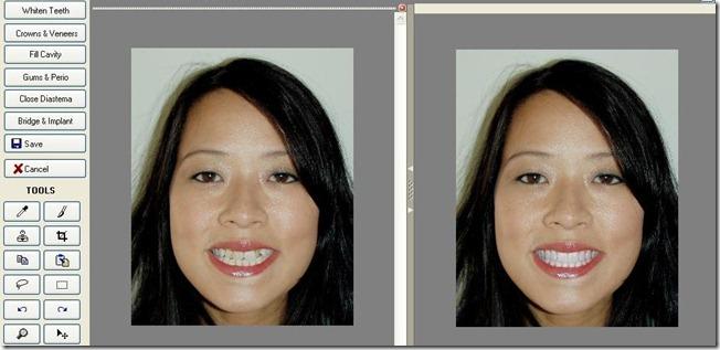 Dental Cosmetic Imaging