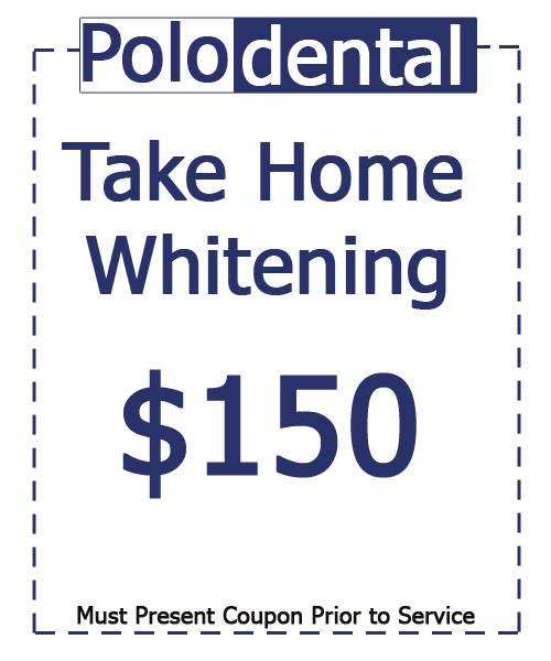 Take Home Whitening