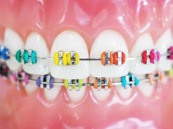 Orthodontic-Treatment-Braces